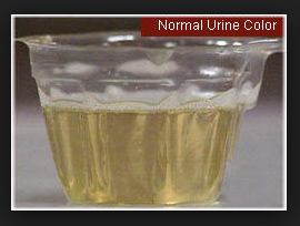 urine color 2013-08-01_0722
